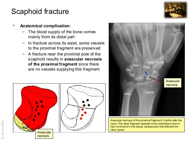 Imaging anatomy scaphoid fracture