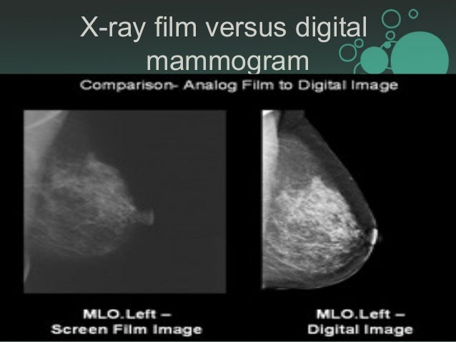 imaging breast mammogram