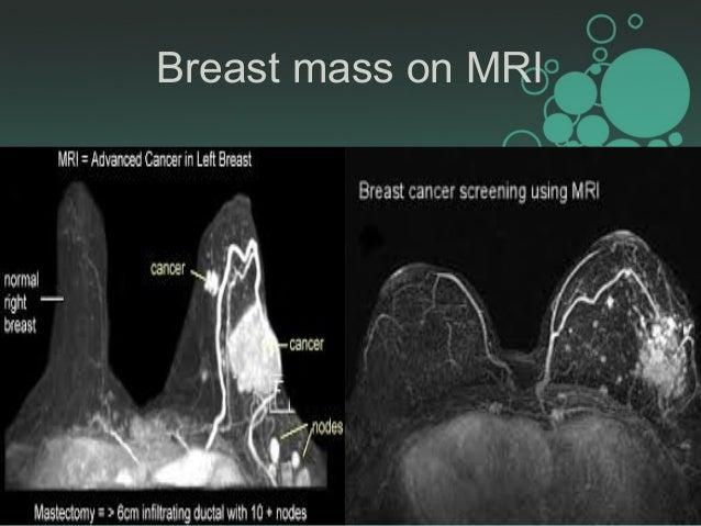 Mri breast mass