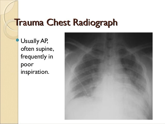 trauma radiography ppt