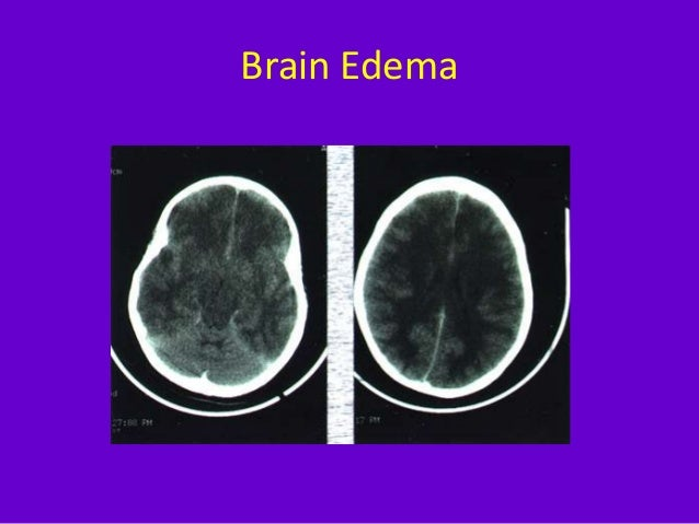 imaging in acute stroke
