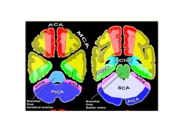 Image Result For R Pca Stroke