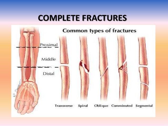 Imaging in fractures
