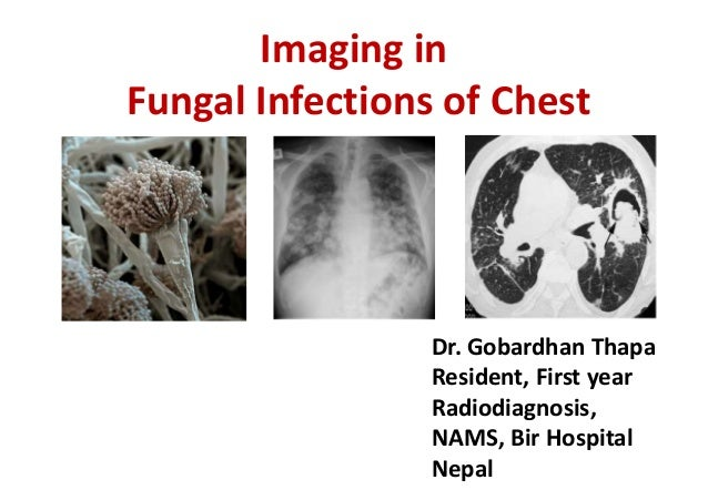 Imaging in Fungal Infections of Chest Dr. Gobardhan Thapa Resident, First year Radiodiagnosis, NAMS, Bir Hospital Nepal