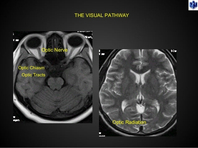 Imaging In Neuro Ophthalmology Amp Revisting Orbital Imaging