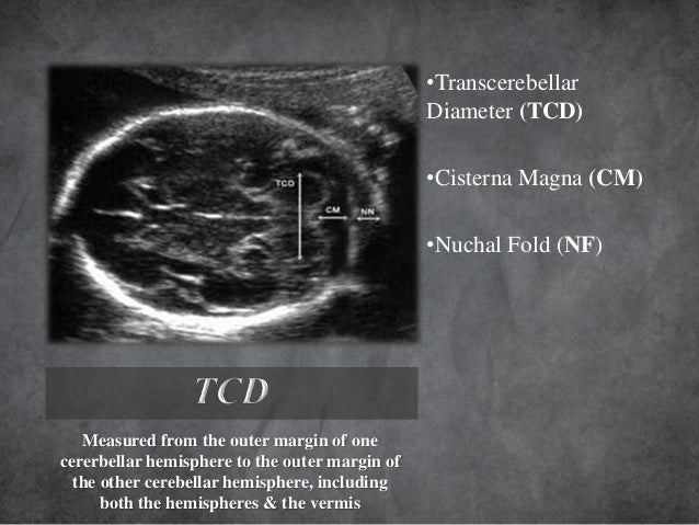 Imaging In Obstetrics Gynaecology