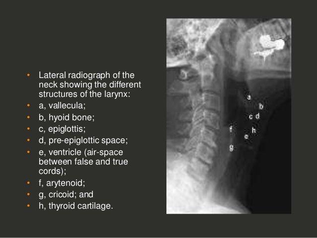 full story larynx imaging ct mri dr ahmed esawy