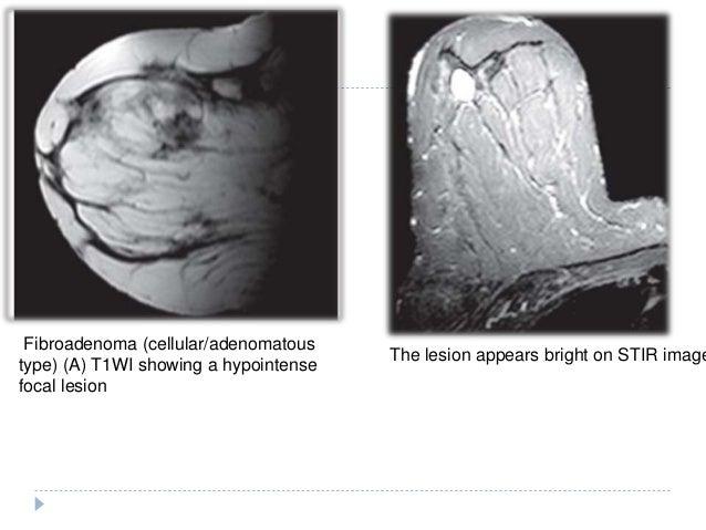 Imaging of breast pathologies