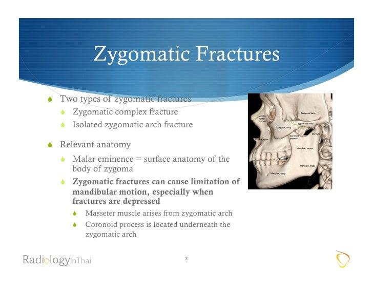 zygomatic arch definition