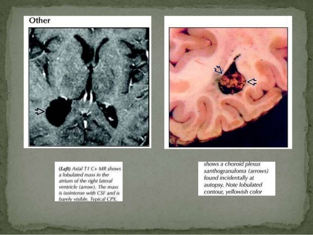 Radiological imaging of intracranial cystic lesions for Cystic lesion with mural nodule