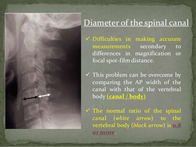 cervical retrolisthesis symptoms Cervical spondylolisthesis can be difficult to diagnose because it is relatively rare and its symptoms are similar to those of other upper spine conditions.