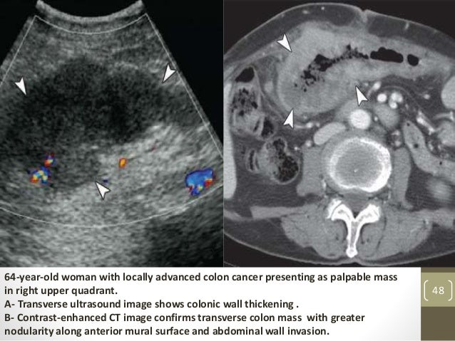Imaging Of The Large Bowel