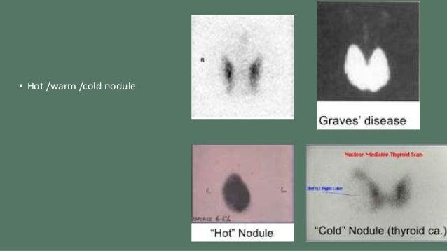 Hot nodule thyroid