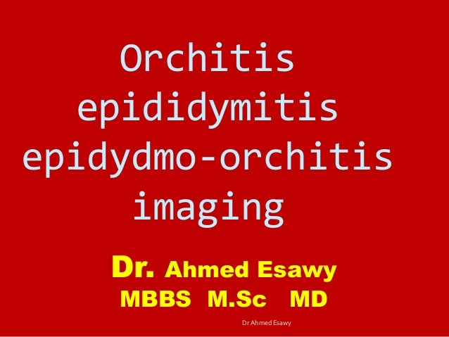Orchitis epididymitis epidydmo-orchitis imaging Dr. Ahmed Esawy MBBS M.Sc MD Dr Ahmed Esawy