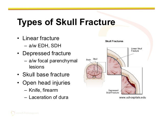 Linear Skull Fracture : Imaging of the traumatic brain injury by rathachai kaewlai md