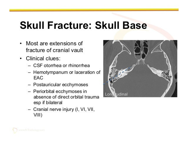 Imaging Of The Traumatic Brain Injury By Rathachai Kaewlai Md