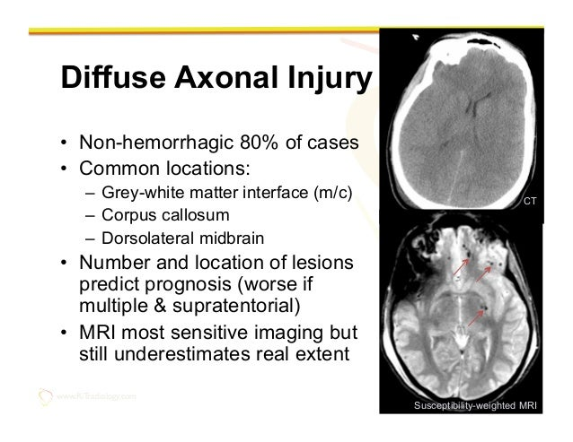 Imaging of the traumatic brain injury by Rathachai Kaewlai, MD