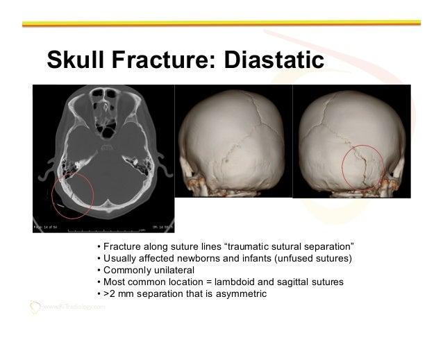 Imaging of Traumatic Brain Injury X Ray Human Skull