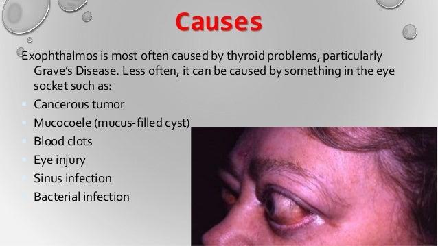 Thyroid Gland Iman Alhussein