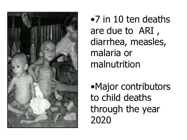 Causes of Death in Children Under- nutrition 53%