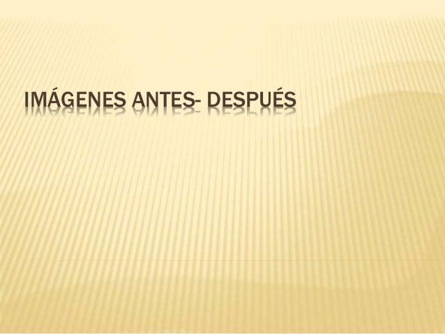 IMÁGENES ANTES- DESPUÉS