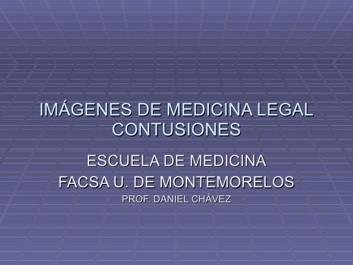 IMÁGENES DE MEDICINA LEGAL CONTUSIONES ESCUELA DE MEDICINA FACSA U. DE MONTEMORELOS PROF. DANIEL CHÀVEZ