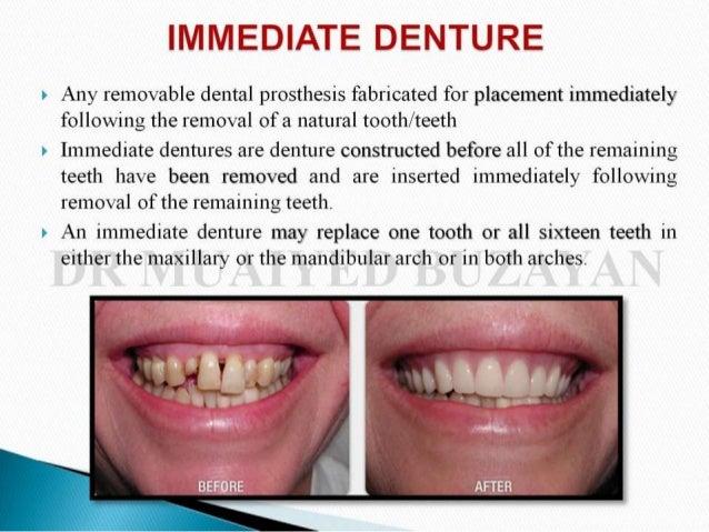 Immediate denture Slide 3