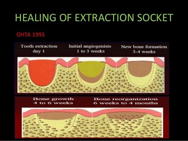 最高 Day By Day Tooth Extraction Healing - 無力な広場