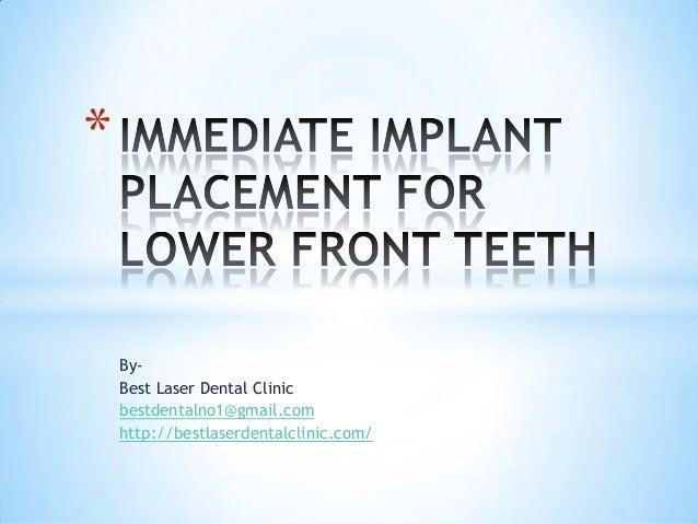 By- Best Laser Dental Clinic bestdentalno1@gmail.com http://bestlaserdentalclinic.com/ *