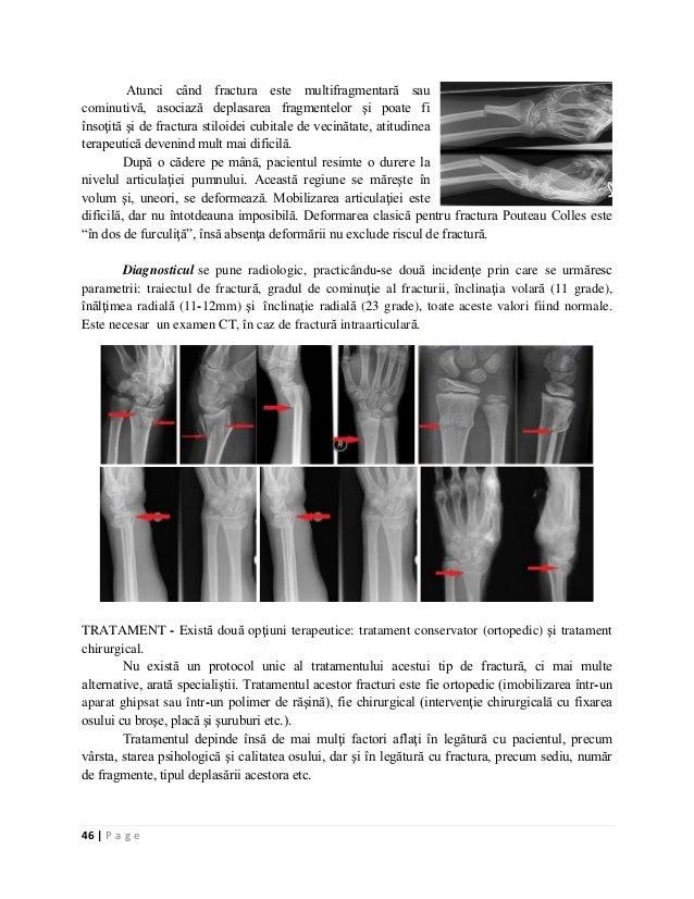 Cum sa strapunga cartilajul in ureche fara durere
