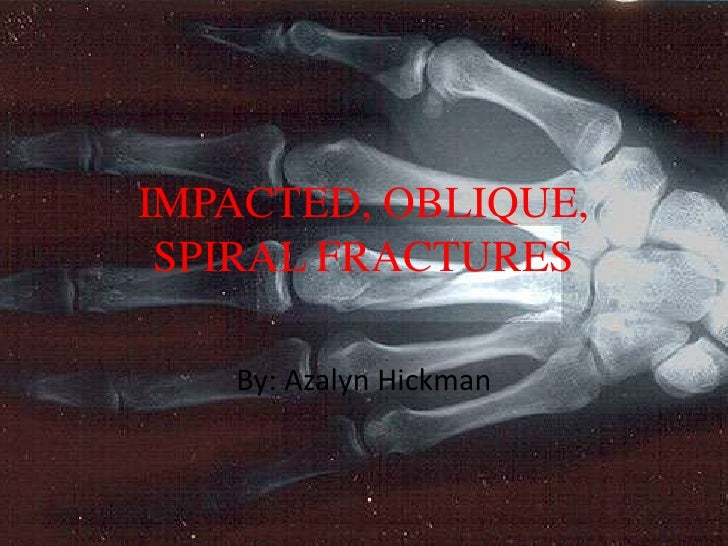 IMPACTED, OBLIQUE, SPIRAL FRACTURES   By: Azalyn Hickman
