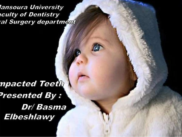 """Items - Definition of Impacted Tooth - Causes - Classification - Frequency - Indications for removal of Impacted Tooth """" C..."""
