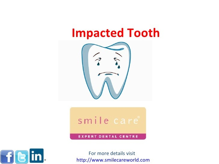 Impacted Tooth      For more details visithttp://www.smilecareworld.com