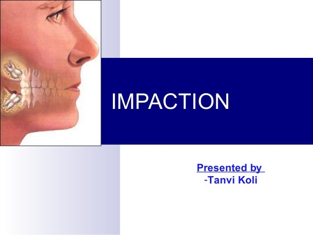 IMPACTIONPresented by-Tanvi Koli
