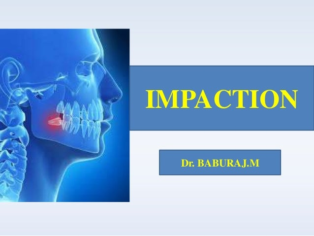 IMPACTION Dr. BABURAJ.M