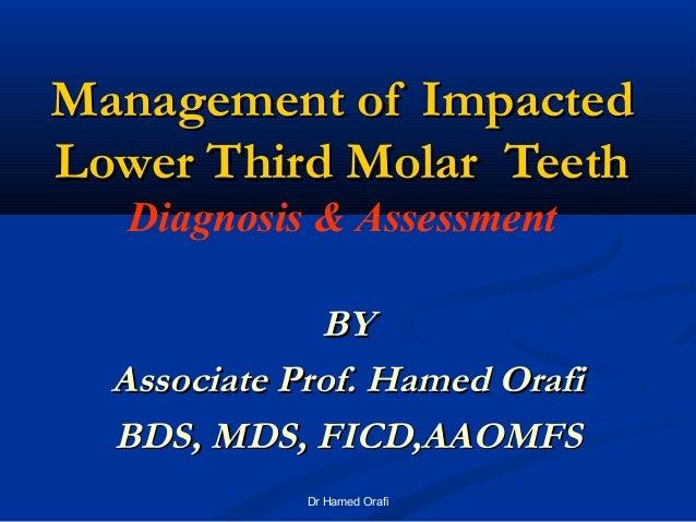 MMaannaaggeemmeenntt ooff IImmppaacctteedd  LLoowweerr TThhiirrdd MMoollaarr TTeeeetthh  Diagnosis & Assessment  BBYY  AAs...