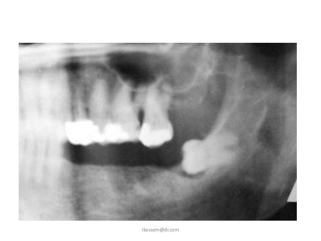 01 johcd inverted and impacted third Molar de minte 23/01/2012  especially concerning impacted third molars when the patient cannot open his or her mouth, because of trismus that is.