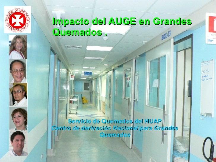 Impacto del AUGE en Grandes Quemados .   Servicio de Quemados del HUAP Centro de derivación Nacional para Grandes Quemados