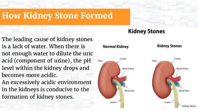 Impact of Kidney Stones on One's Health Slide 2