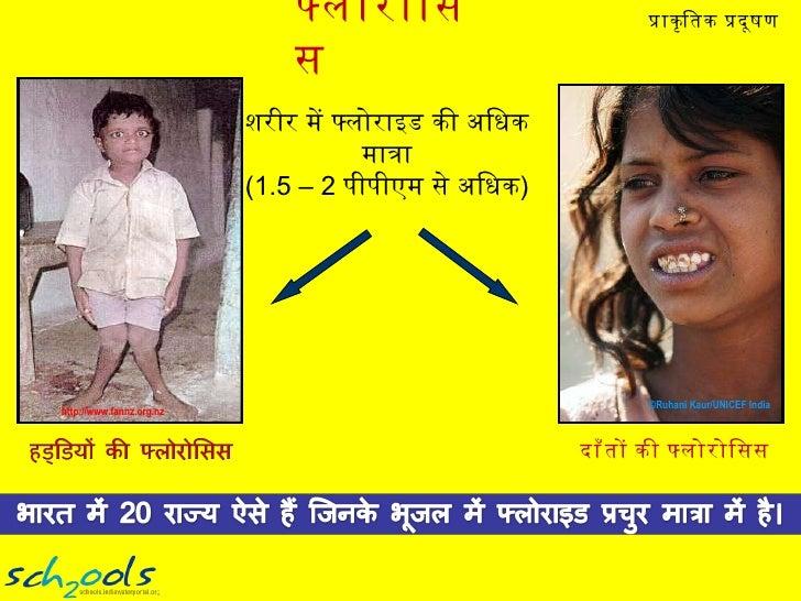 फ्लोरोसिस ©Ruhani Kaur/UNICEF India  http://www.fannz.org.nz दाँतों की फ्लोरोसिस शरीर में फ्लोराइड की अधिक मात्रा (1.5 – 2...