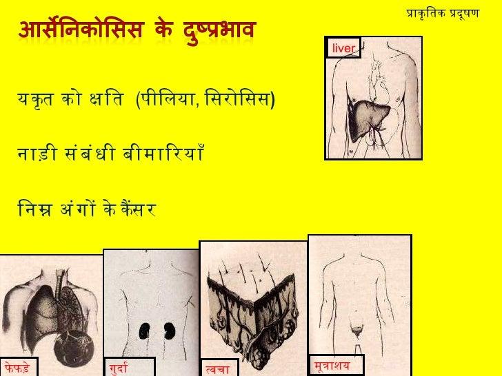 <ul><li>यकृत को क्षति  ( पीलिया ,  सिरोसिस ) </li></ul><ul><li>नाड़ी संबंधी बीमारियाँ </li></ul><ul><li>निम्न अंगों के कैं...