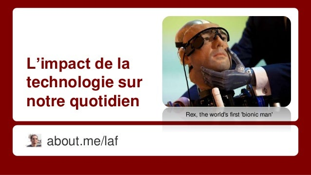 L'impact de la technologie sur notre quotidien about.me/laf Rex, the world's first 'bionic man'
