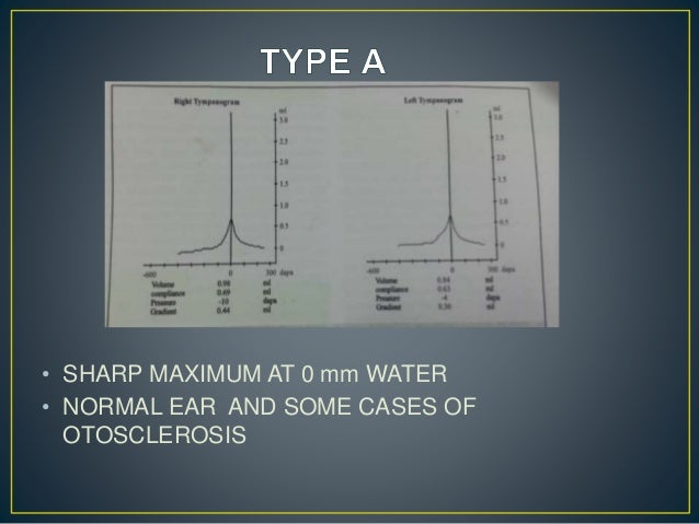 • SHARP MAXIMUM AT 0 mm WATER • NORMAL EAR AND SOME CASES OF OTOSCLEROSIS