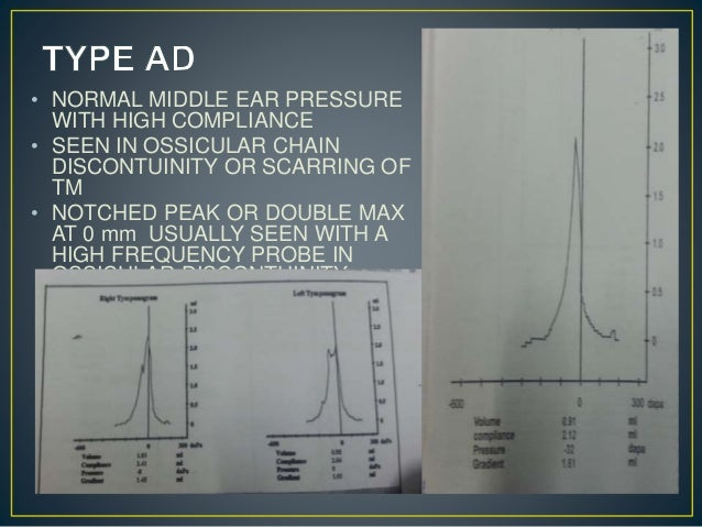 • NORMAL MIDDLE EAR PRESSURE WITH HIGH COMPLIANCE • SEEN IN OSSICULAR CHAIN DISCONTUINITY OR SCARRING OF TM • NOTCHED PEAK...