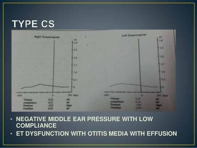 • NEGATIVE MIDDLE EAR PRESSURE WITH LOW COMPLIANCE • ET DYSFUNCTION WITH OTITIS MEDIA WITH EFFUSION