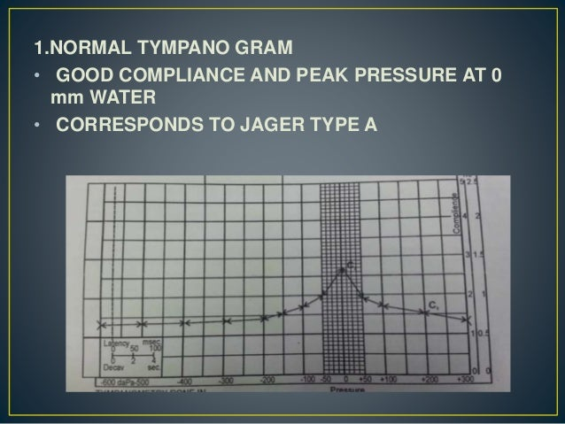 1.NORMAL TYMPANO GRAM • GOOD COMPLIANCE AND PEAK PRESSURE AT 0 mm WATER • CORRESPONDS TO JAGER TYPE A