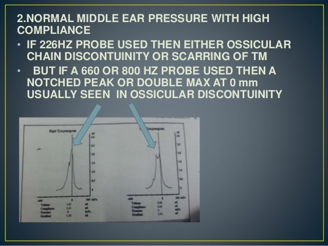 2.NORMAL MIDDLE EAR PRESSURE WITH HIGH COMPLIANCE • IF 226HZ PROBE USED THEN EITHER OSSICULAR CHAIN DISCONTUINITY OR SCARR...