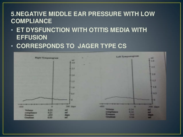 5.NEGATIVE MIDDLE EAR PRESSURE WITH LOW COMPLIANCE • ET DYSFUNCTION WITH OTITIS MEDIA WITH EFFUSION • CORRESPONDS TO JAGER...