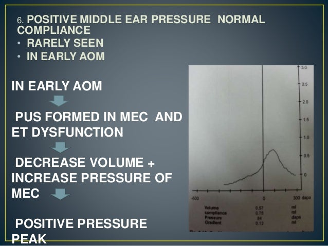 6. POSITIVE MIDDLE EAR PRESSURE NORMAL COMPLIANCE • RARELY SEEN • IN EARLY AOM IN EARLY AOM PUS FORMED IN MEC AND ET DYSFU...