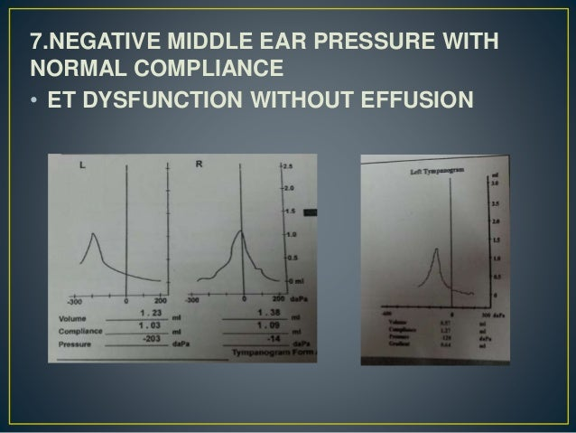 7.NEGATIVE MIDDLE EAR PRESSURE WITH NORMAL COMPLIANCE • ET DYSFUNCTION WITHOUT EFFUSION